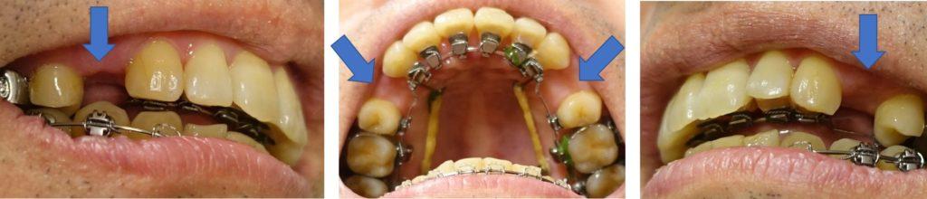 治療開始11か月後 第一小臼歯抜歯後の隙間