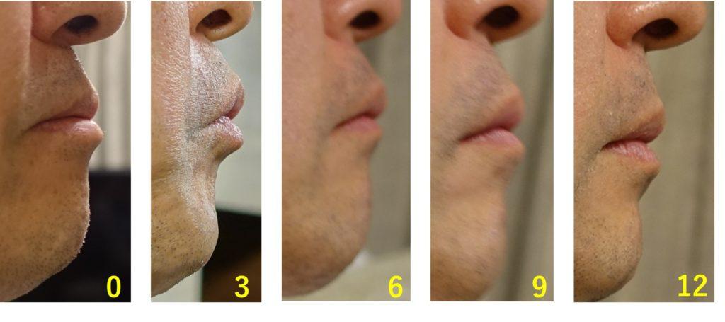 上顎出っ歯 一年間経過 3月毎 右から 口閉じた図