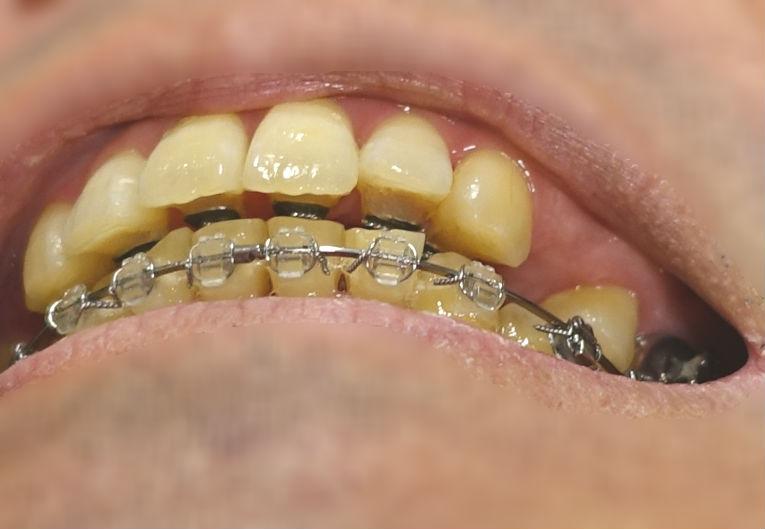 歯科矯正 12か月目 EC