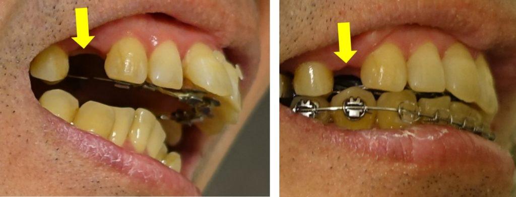 歯科治療13カ月 左下 上あご抜歯部の隙間の変化
