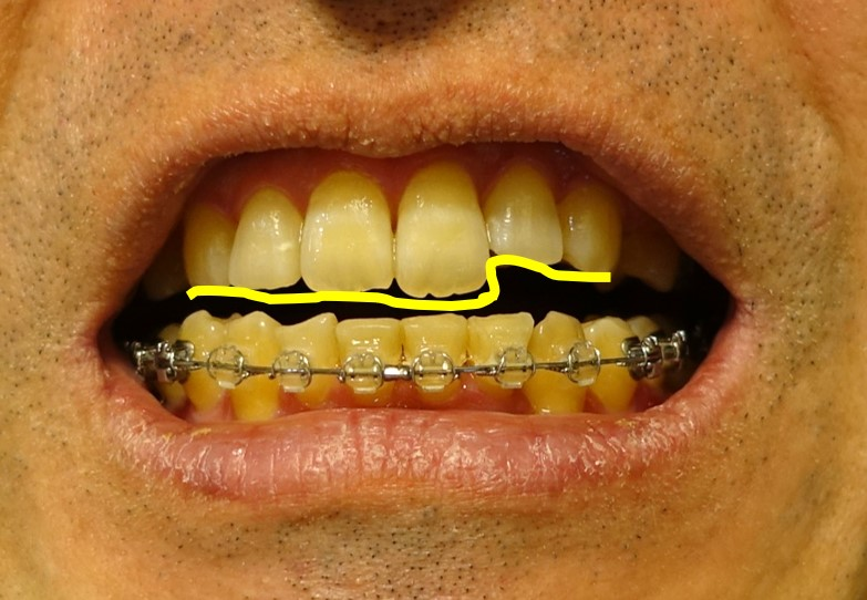 歯科治療13カ月 上あご 切歯のガタガタ