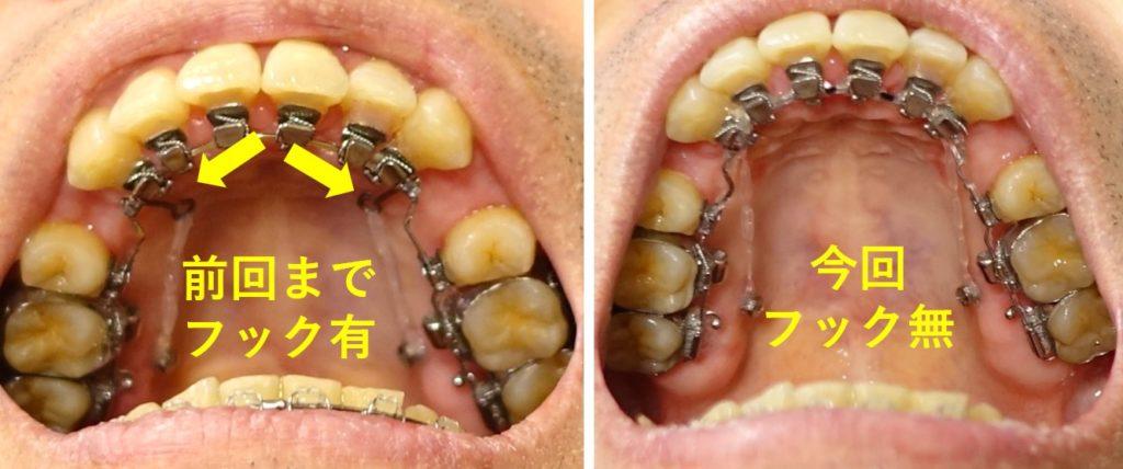 歯科治療13カ月 上あごアーチワイヤー フック無に変更