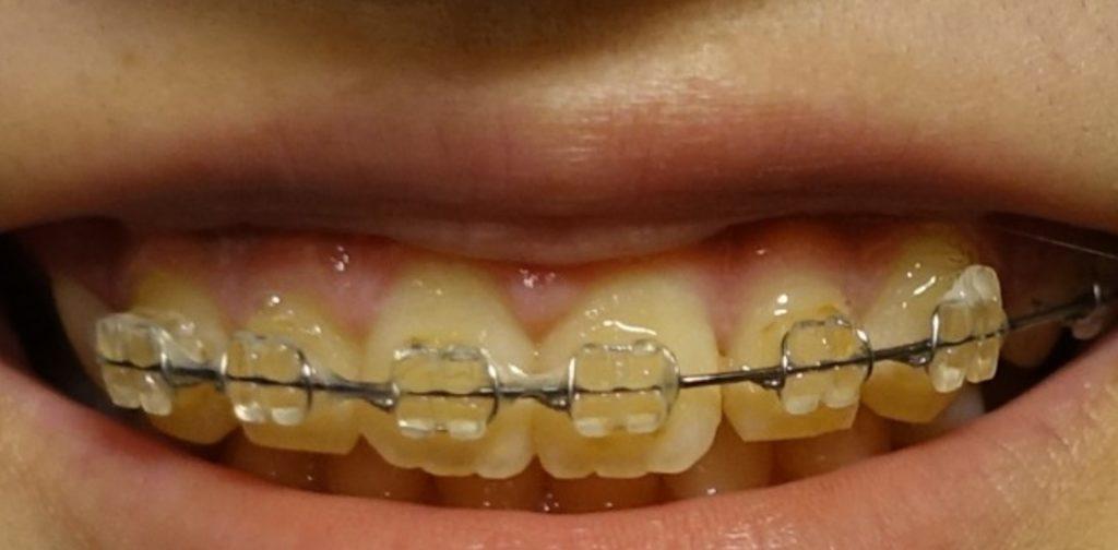 治療終盤の並んだ歯