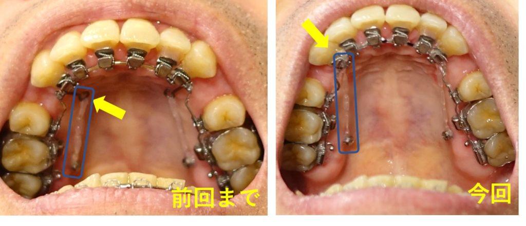 歯科治療13カ月 上あご インプラントから犬歯をけん引