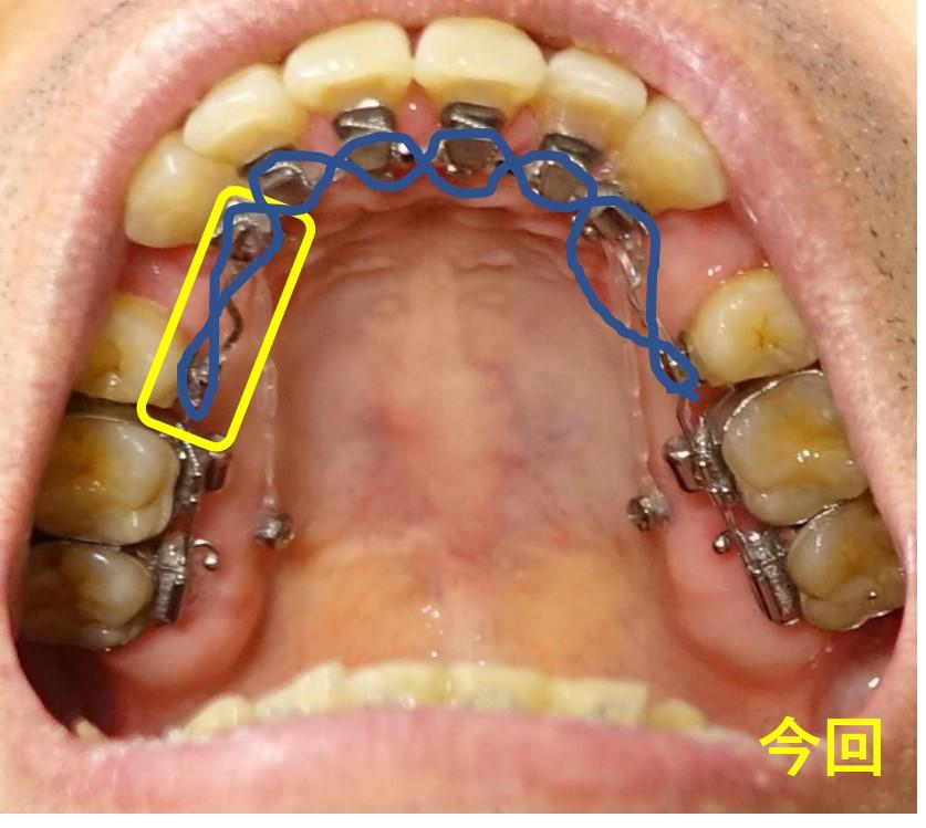 歯科治療13カ月 上あご 切歯から犬歯、第二小臼歯にかけて弾性ゴム