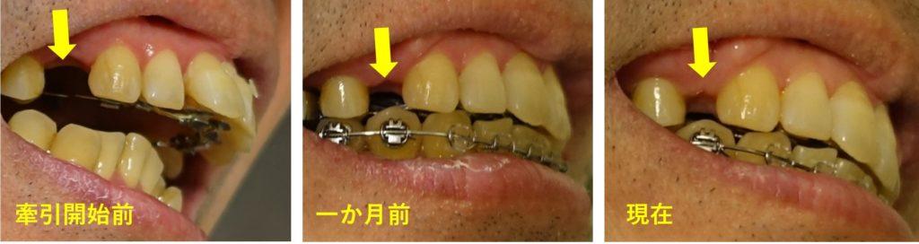 歯科矯正14カ月 右上顎抜歯部隙間の経過
