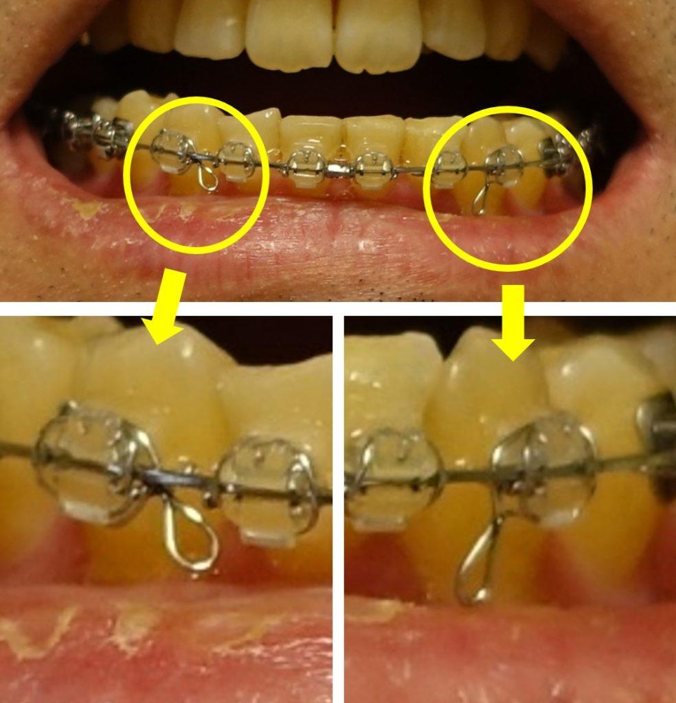 14回目歯科矯正 下あご切歯のブラケットに装着したフック