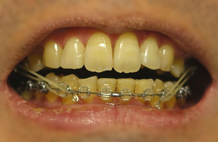 14回目歯科矯正 新たな顎間ゴム装着 上第一大臼歯から下の犬歯へ