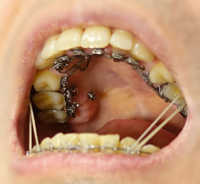 14回目歯科矯正 顎間ゴム装着 結構伸びる