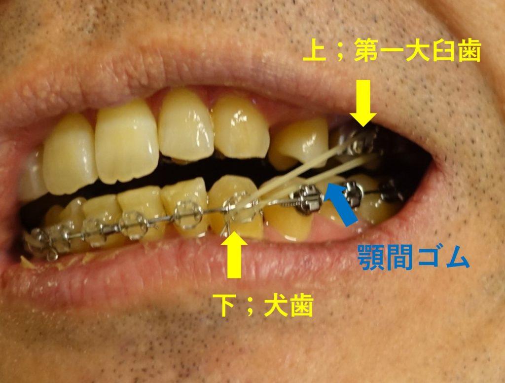 14回目歯科矯正 新たな顎間ゴム装着 上第一大臼歯から下の犬歯へ 拡大図