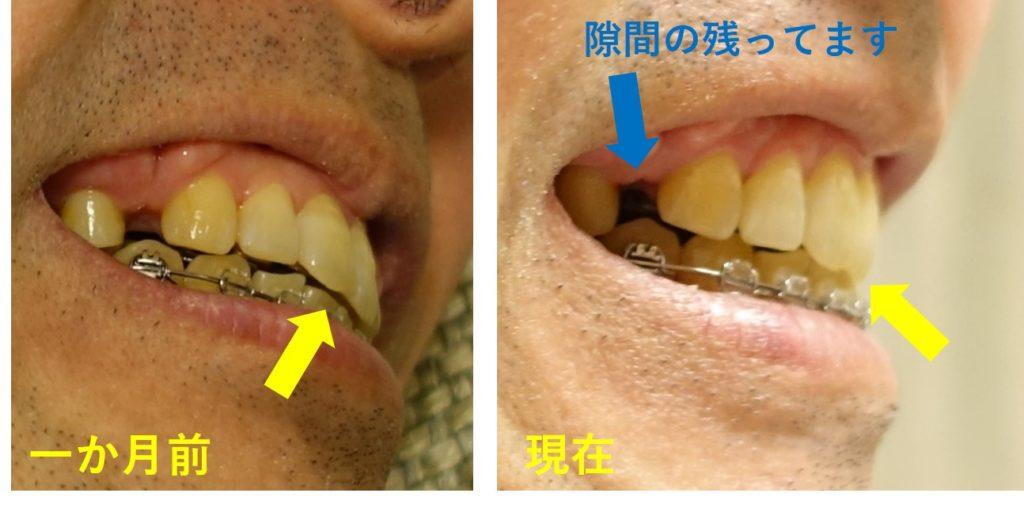 14回目歯科矯正 切歯のかみ合わせ状態