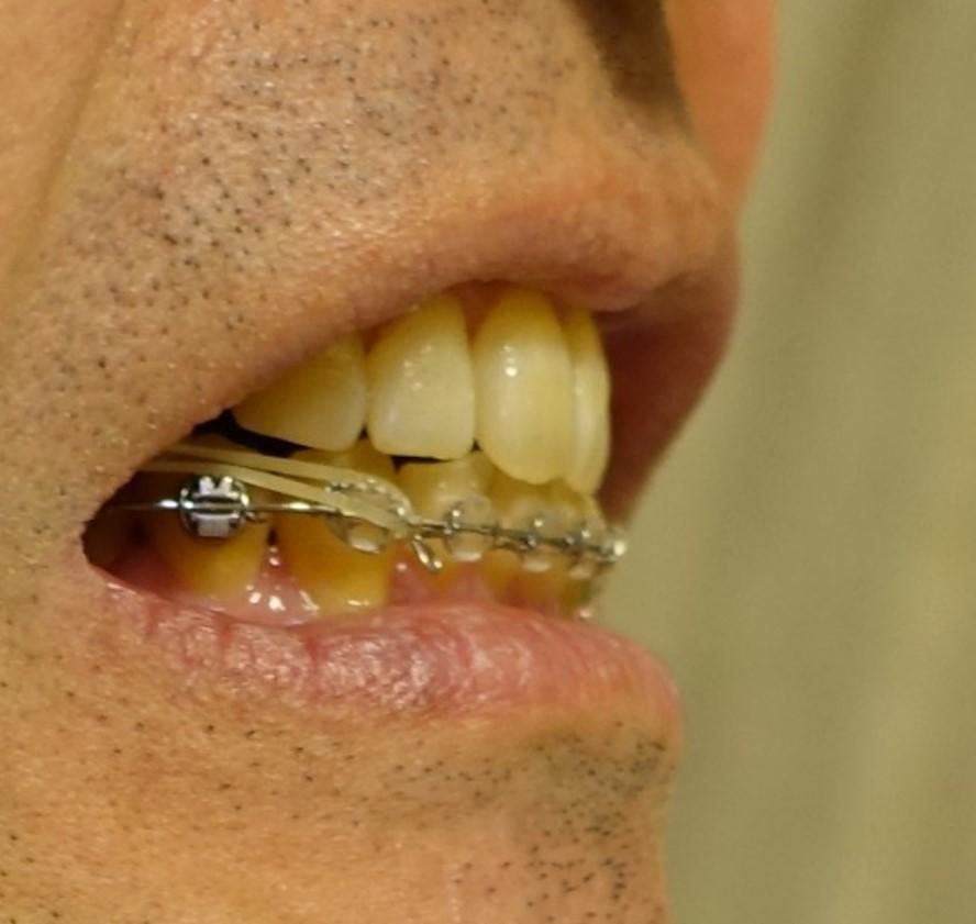 歯科矯正 23回目診察 横からショット
