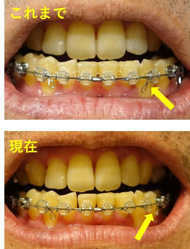 歯科矯正24回目 顎間ゴムを付けるフックの位置移動後