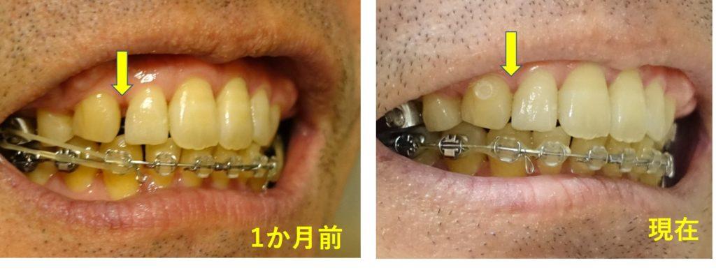 17か月目歯科矯正 右上顎犬歯と第二切歯の隙間は閉鎖