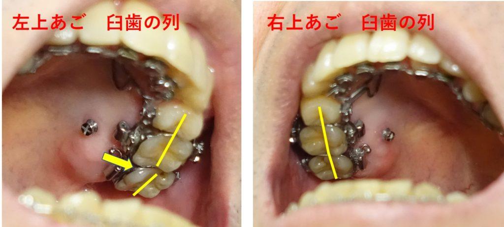 17か月目歯科矯正 左右の臼歯の並びの差