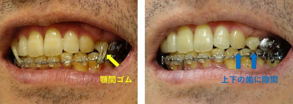 17か月目歯科矯正 左犬歯あたりは隙間がある。