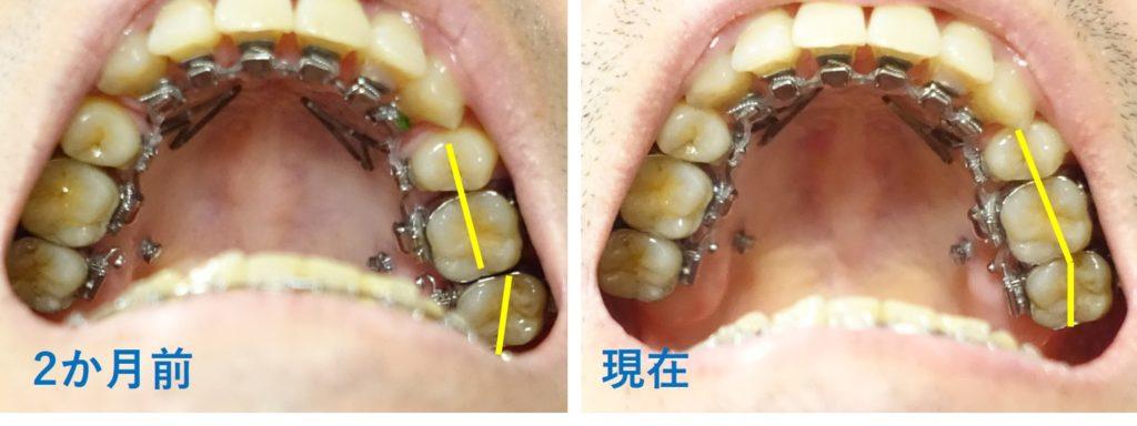 17か月目歯科矯正 上顎左右の臼歯の並びの経過
