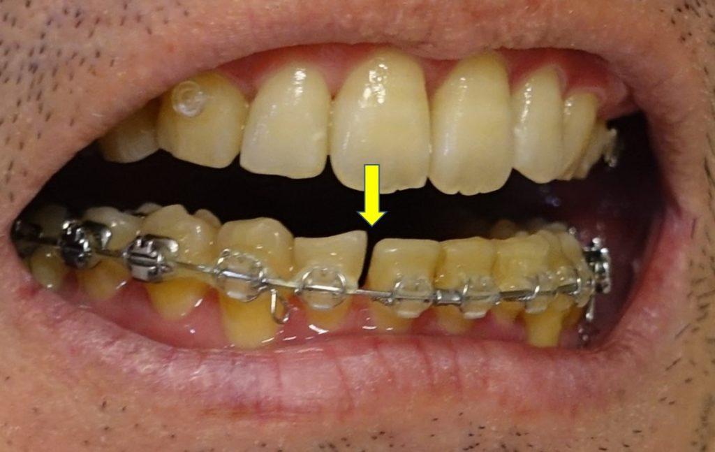 17か月目歯科矯正 下顎 切歯間の隙間 受診前日