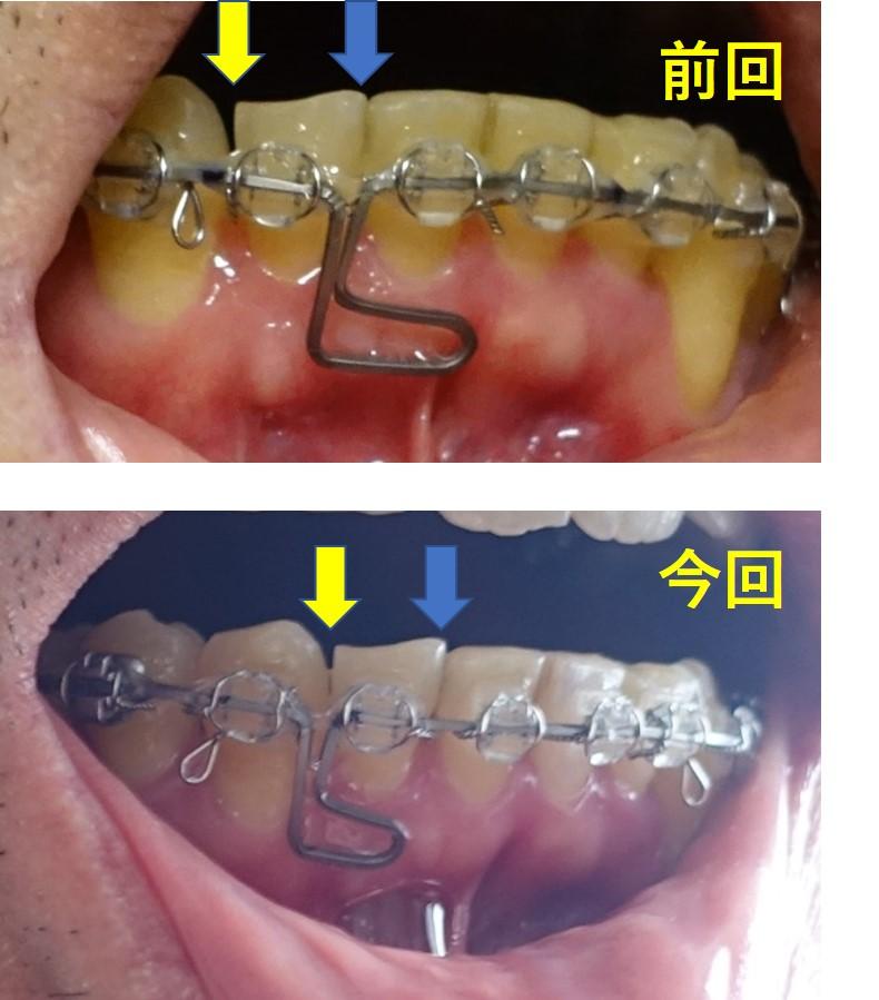 19か月目 下顎アーチワイヤー交換 ループの位置移動