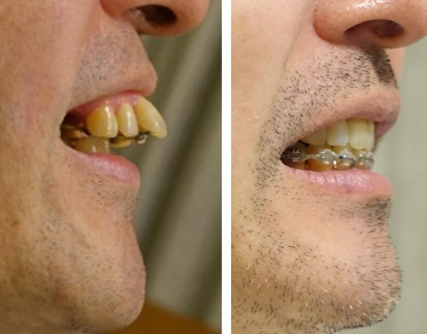 歯科矯正 19カ月の変化 側面から
