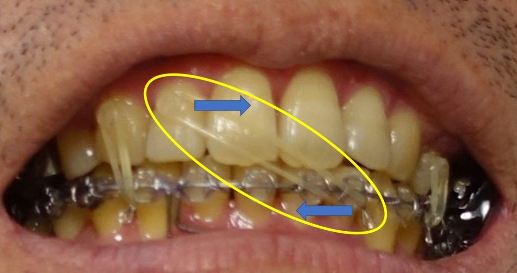 19か月目 右上顎切歯から下顎左への顎間ゴム
