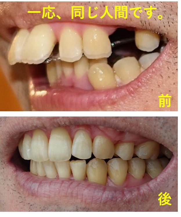 歯科矯正 最終回 20か月の変化