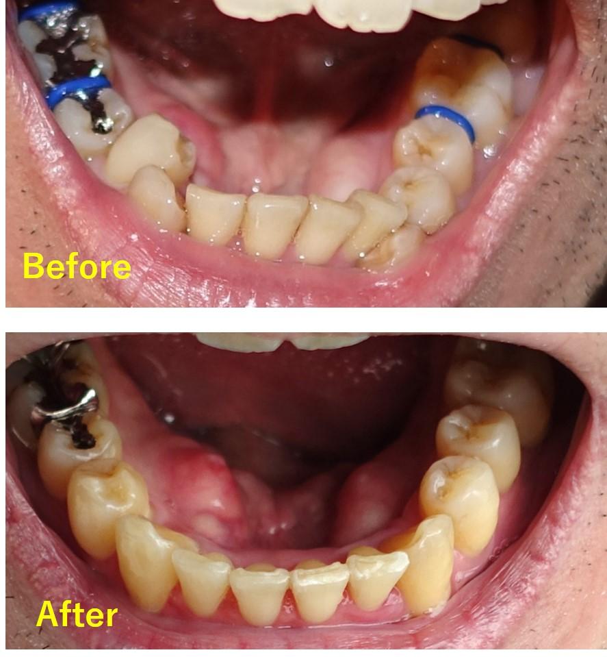 歯科矯正 成人 Before after 下顎 上から