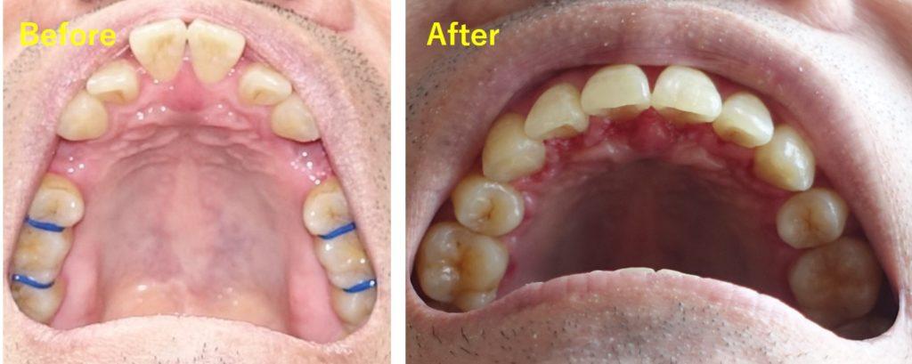 歯科矯正 成人 Before after 総集 上あご下から